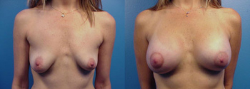 Breast Augmentation With Lift 4