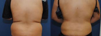 Liposuction Patient 16