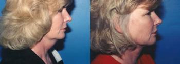 Liposuction Patient 5
