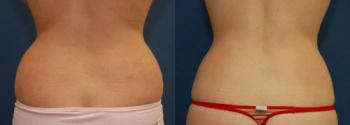 Liposuction Patient 11