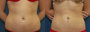 Liposuction Patient 14