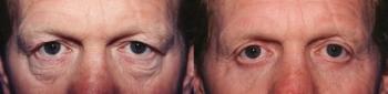 Eyelid Lift Patient 1