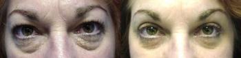 Eyelid Lift Patient 2