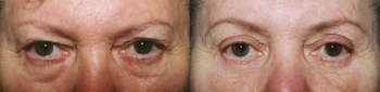 Eyelid Lift Patient 3