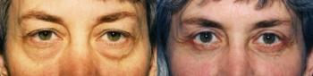 Eyelid Lift Patient 4