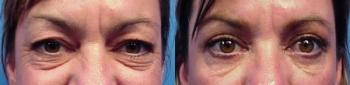 Eyelid Lift Patient 5