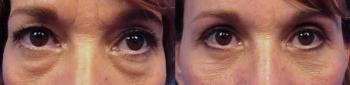 Eyelid Lift Patient 6