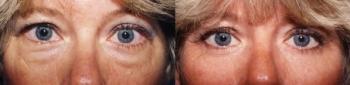 Eyelid Lift Patient 7