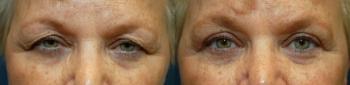 Eyelid Lift Patient 8
