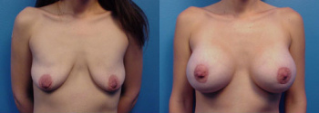 Breast Augmentation With Lift 2