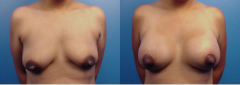 Breast Augmentation With Lift 3