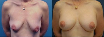 Breast Augmentation With Lift 1