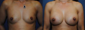 Breast Augmentation 69
