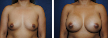 Breast Augmentation 68