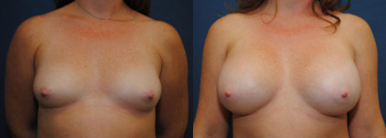 Breast Augmentation 50