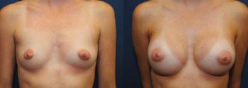 Breast Augmentation 54