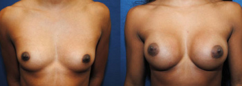 Breast Augmentation 56