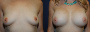 Breast Augmentation 59