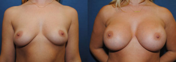 Breast Augmentation 61
