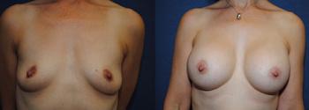 Breast Augmentation 63