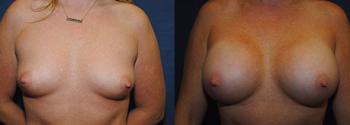 Breast Augmentation 64