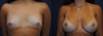Breast Augmentation 65
