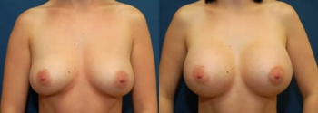 Breast Augmentation 13