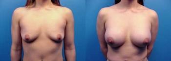 Breast Augmentation 16