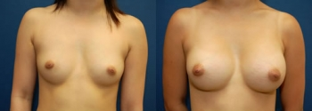 Breast Augmentation 17