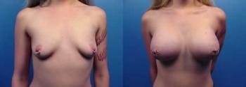 Breast Augmentation 20