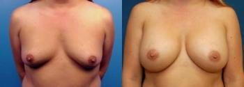 Breast Augmentation 8