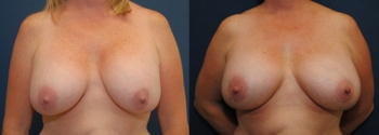 Breast Augmentation Revision 10