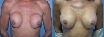 Breast Augmentation Revision 2