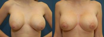 Breast Augmentation Revision 3