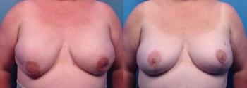 Breast Augmentation Revision 4