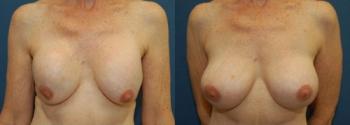 Breast Augmentation Revision 5