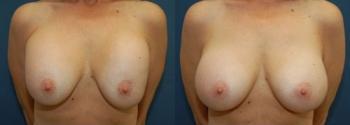 Breast Augmentation Revision 6