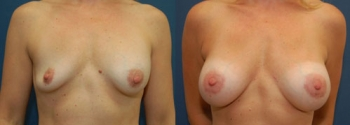 Breast Augmentation Revision 7