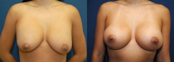 Breast Augmentation Revision 8