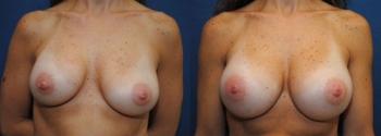 Breast Augmentation Revision 9