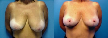 Breast Lift 3