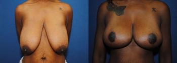 Breast Lift 6