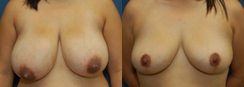 Breast Reduction Patient 10