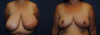 Breast Reduction Patient 14