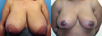 Breast Reduction Patient 7