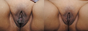 Labiaplasty Patient 5