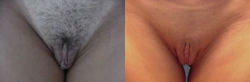 Labiaplasty Patient 1