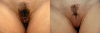 Labiaplasty Patient 2