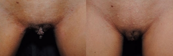 Labiaplasty Patient 4