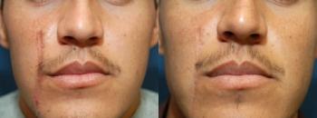Laser Spa Patient 6